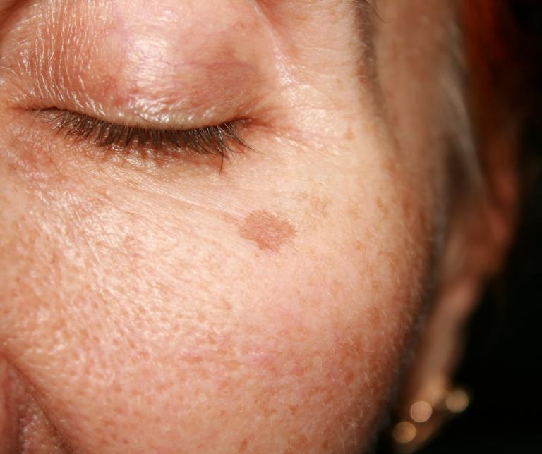 pigmentvlekken verwijderen effectieve behandeling