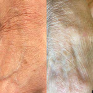 pigment hyperpigmentatie ouderdomsvlek pigmentvlekken voorschoten leiden wassenaar